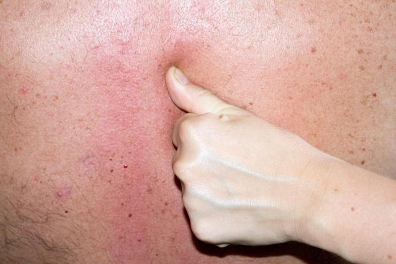 Typický dornovský palec a usádzanie stavcov hrudnej chrbtice